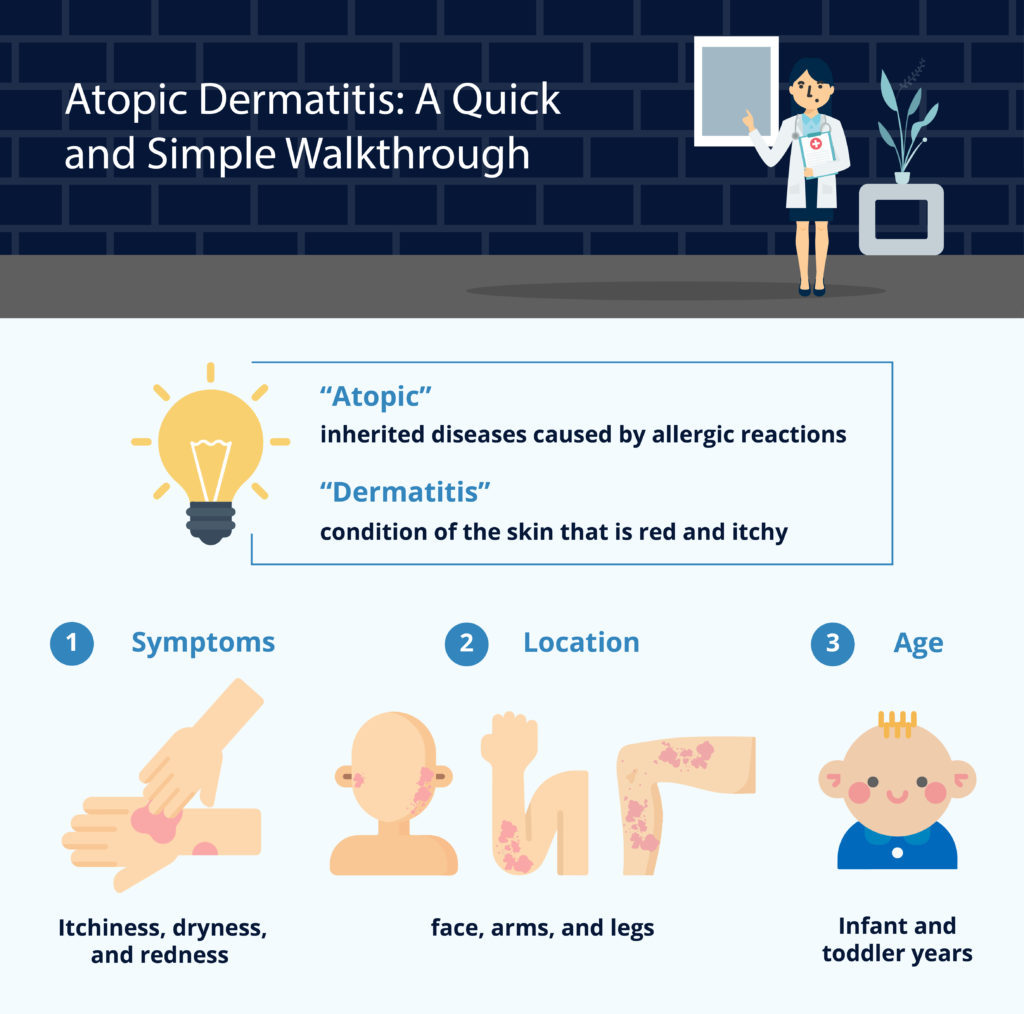 Atopic Dermatitis-A Quick and Simple Walkthrough