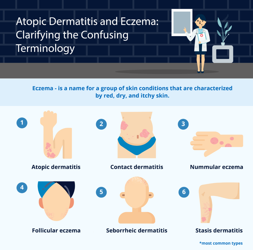 Atopic-Dermatitis-and-Eczema-Clarifying-the-Confusing-Terminology